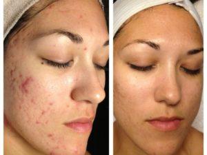 Химический пилинг лица фото до и после