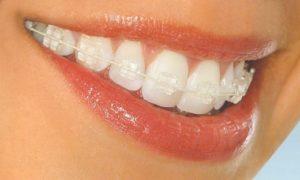 зуби, прикус, посмішка, виправлення прикусу, стоматологія, ортодонт, лікування прикусу, брекети, корекція прикусу, правила носіння брекетів, постановка брекетів, стоматолог, лікування зубів