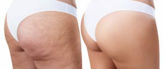 целлюлит, лимфодренаж, лимфодренажный массаж, массаж, косметические процедуры, уход за кожей, массаж для похудения, как похудеть, лечение целлюлита
